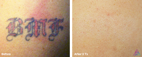 Before&After.BMF