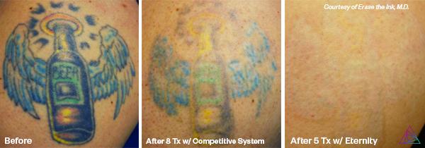 Lasert tattoo removal, Big Rapids tattoo removal