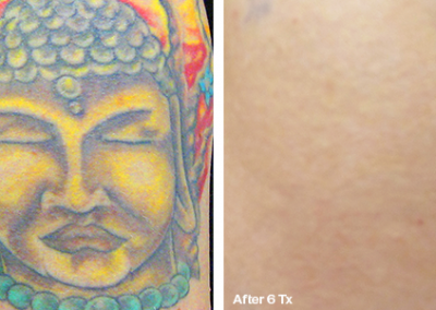 Before&After.Buddha