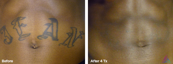 Before&After.Jean