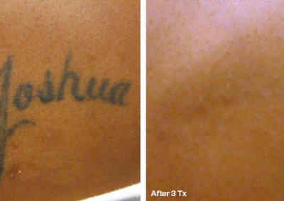 Before&After.Joshua
