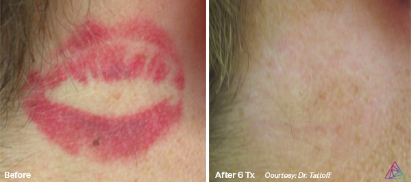 Before&After.Kiss