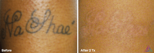 Before&After.NaShae