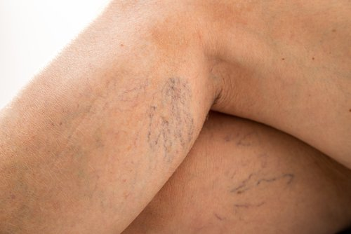 spider veins, removal spider vein, big rapids vein, mecosta vein