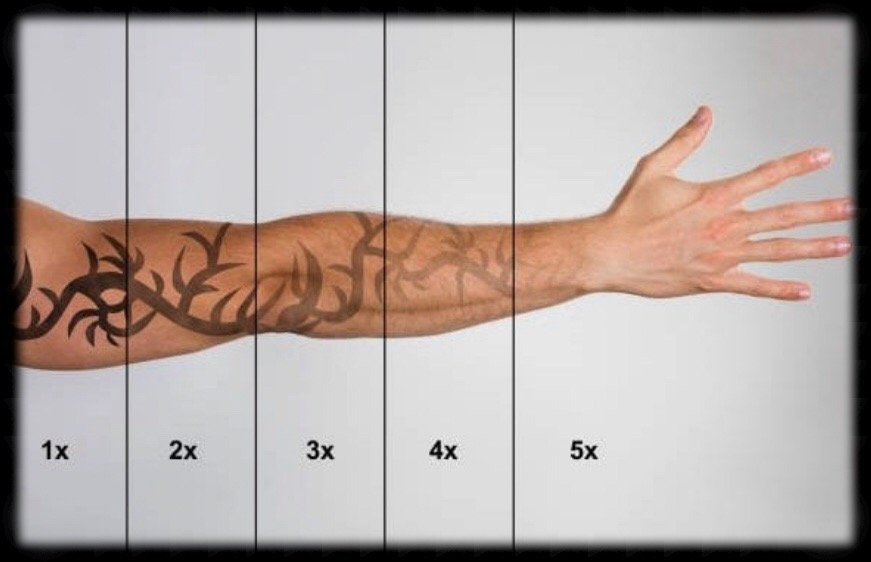 Why Does Laser Tattoo Removal Take Time?
