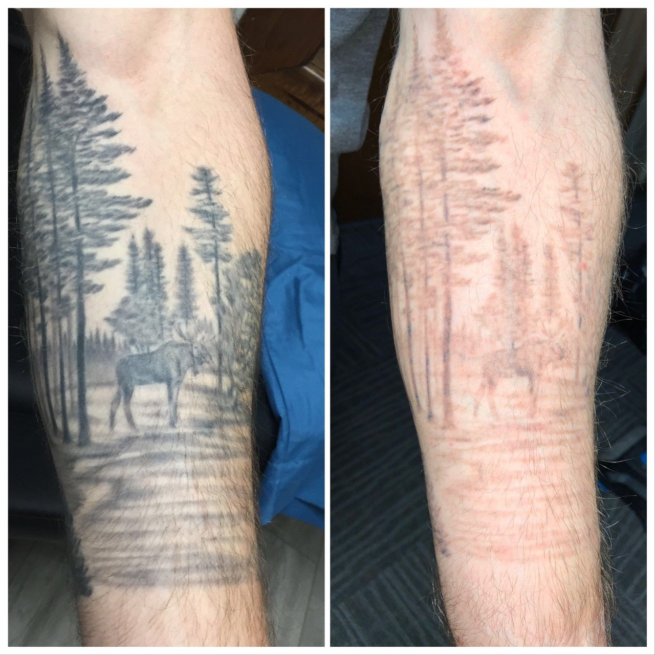 Example of tattoo removal